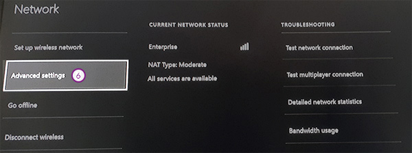 xbox one how to change dns