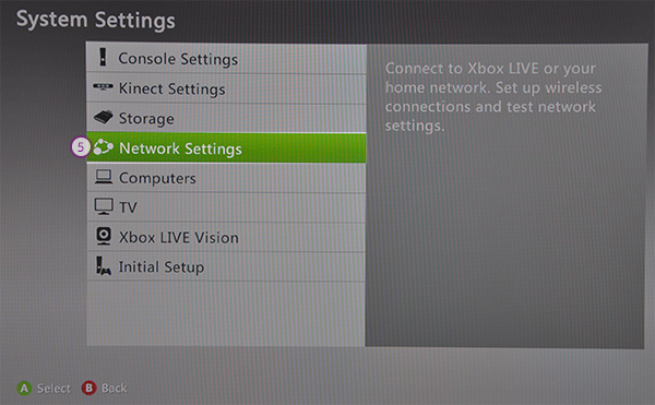 how to change your dns settings on xbox 360